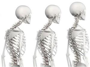 Impact sur la posture